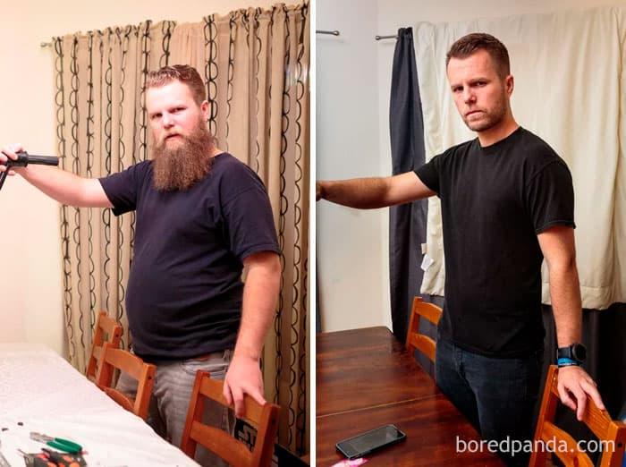 «До и После» алкоголизма: 30 фотоисторий