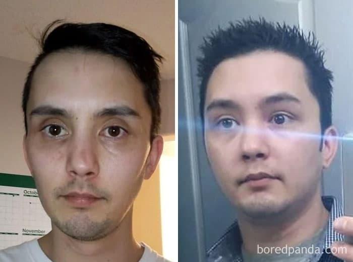 «До и После» алкоголизма: еще 28 фотоисторий